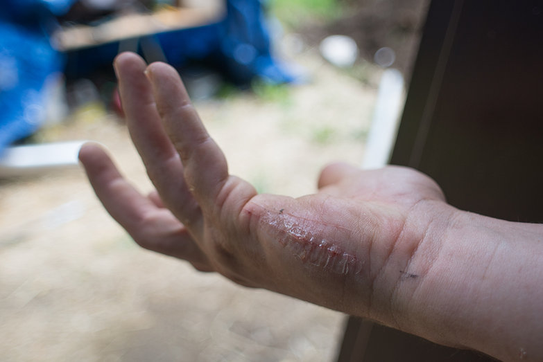 Blood Lathe Scar + Super Glue