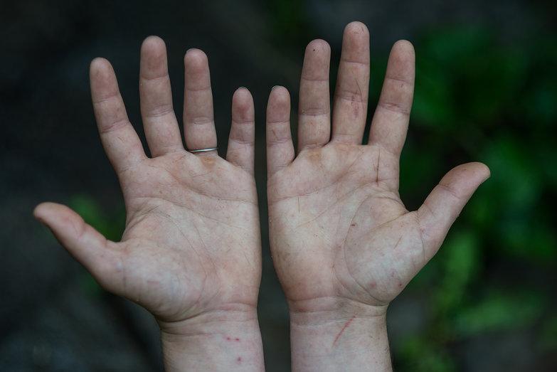 Tara's Cut-Up Hands