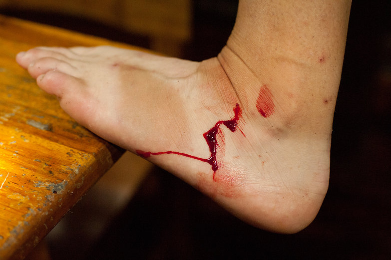 Bloody Leech Removal
