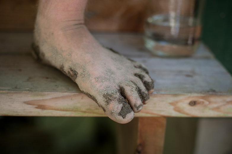 Tyler's Muddy Foot